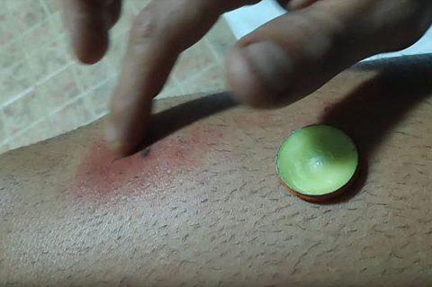 Picadura Insecto en Tailandia